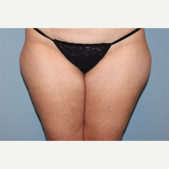 45-54 year old woman treated with Liposuction before 3588275