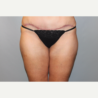 45-54 year old woman treated with Liposuction after 3588275