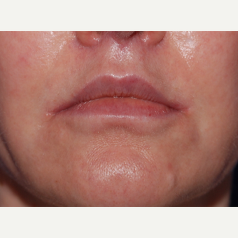 45-54 year old woman treated with Lip Lift after 3625191