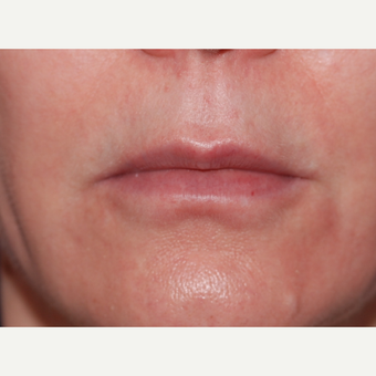 45-54 year old woman treated with Lip Lift before 3625191