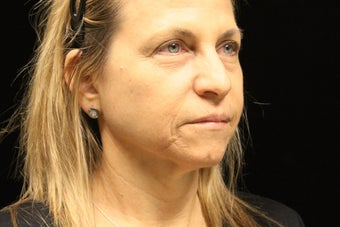 45-54 year old woman treated with Liquid Facelift 3502837