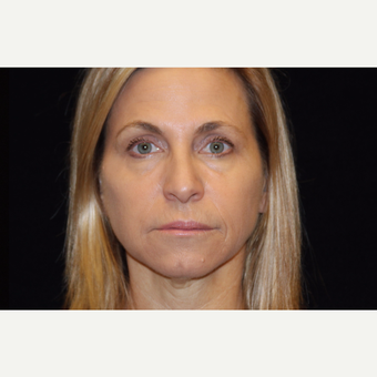 45-54 year old woman treated with Liquid Facelift after 3502837