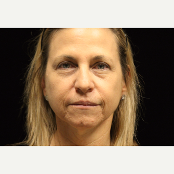 45-54 year old woman treated with Liquid Facelift before 3502837