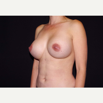 35-44 year old woman treated with Breast Implants after 3439963