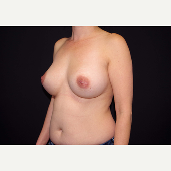 35-44 year old woman treated with Breast Implants before 3439963
