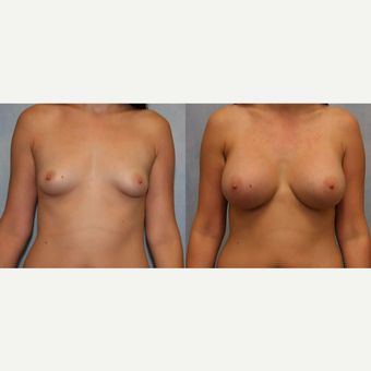 25-34 year old woman treated with Breast Augmentation before 3440407