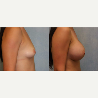 25-34 year old woman treated with Breast Augmentation after 3440407