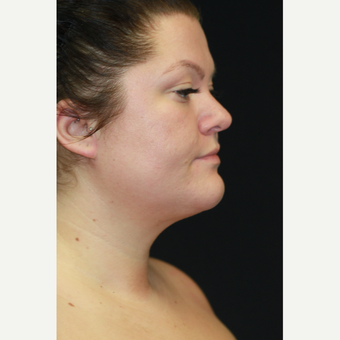 28 year old woman treated with Chin Liposuction
