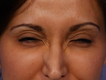 Botox for Crows Feet after 322714