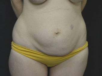 35-44 year old woman treated with Tummy Tuck before 3181999