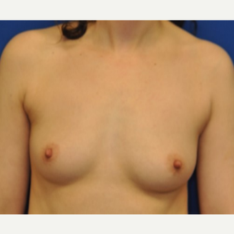 25-34 year old woman treated with Breast Augmentation before 3849238