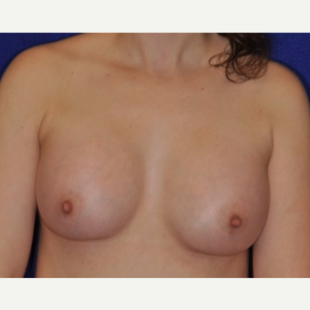 25-34 year old woman treated with Breast Augmentation after 3849238