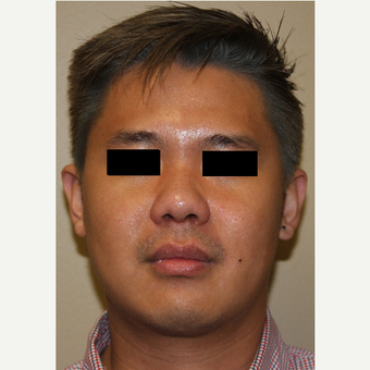 25-34 year old man treated with Rhinoplasty after 3215493