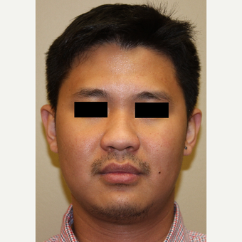 25-34 year old man treated with Rhinoplasty before 3215493