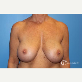 45-54 year old woman treated with Breast Implant Revision before 3305796