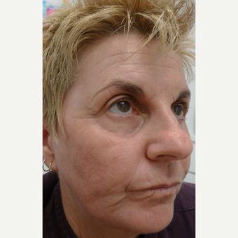 Laser resurfacing - for extreme sun damage after 3133553
