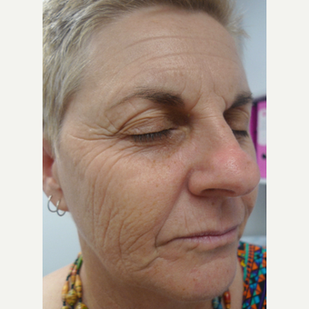 Laser resurfacing - for extreme sun damage before 3133553