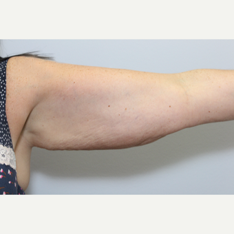 35-44 year old woman treated with Arm Lift before 3265910
