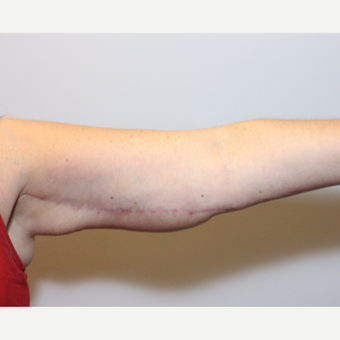 35-44 year old woman treated with Arm Lift after 3265910