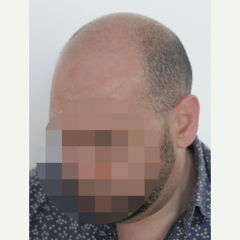 35-44 year old man treated with Hair Transplant before 3178859