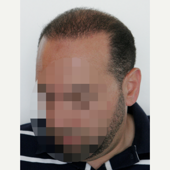 35-44 year old man treated with Hair Transplant after 3178859