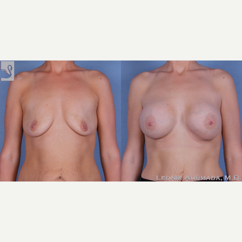 25-34 year old woman treated with Breast Augmentation before 3093449