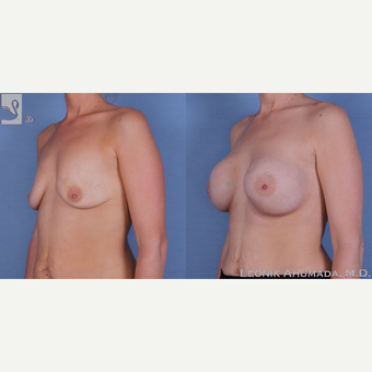 25-34 year old woman treated with Breast Augmentation after 3093449