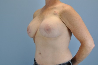 Breast Reconstruction after 963244