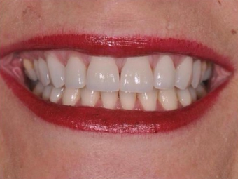 Permanent Teeth-in-1-Day Dental Implants after 1614273