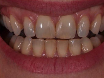 Permanent Teeth-in-1-Day Dental Implants before 1614273