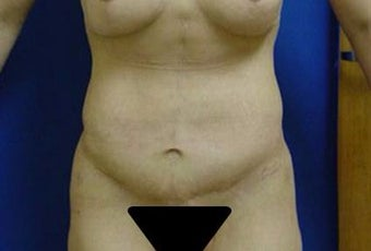 35-44 year old woman treated with Liposuction after 3283450
