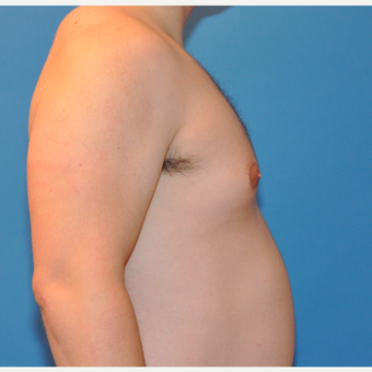 26 Year old male with Gynecomastia Treated with Breast Reduction before 3705429