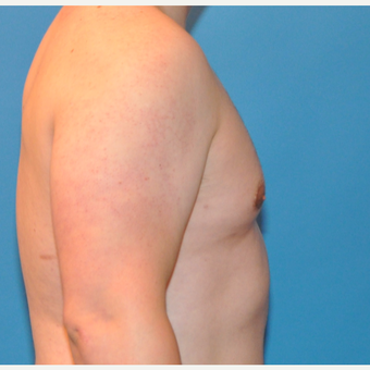 26 Year old male with Gynecomastia Treated with Breast Reduction after 3705429
