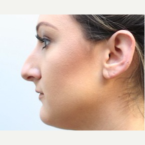 25-34 year old woman treated with Rhinoplasty before 3747747