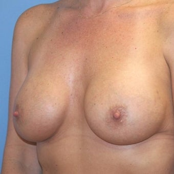 35-44 year old woman treated with Breast Augmentation after 2196962