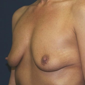 35-44 year old woman treated with Breast Augmentation before 2196962
