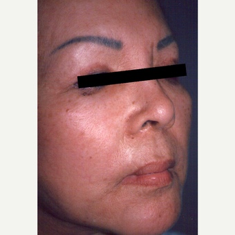 65-74 year old woman treated with Chemical Peel before 3543414