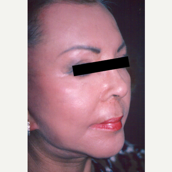 65-74 year old woman treated with Chemical Peel after 3543414