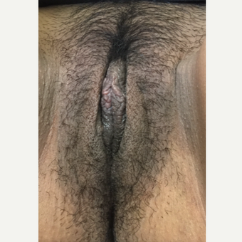 18-24 year old woman treated with Labiaplasty after 3506111