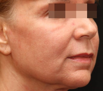 Fraxel Repair for Wrinkles and Sun Damage after 123682