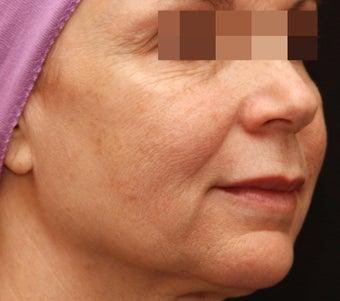 Fraxel Repair for Wrinkles and Sun Damage before 123682