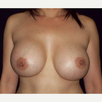 45-54 year old woman treated with Saline Breast Augmentation after 3141626