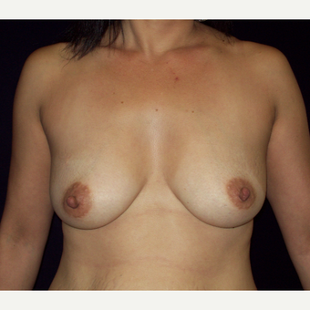 45-54 year old woman treated with Saline Breast Augmentation before 3141626