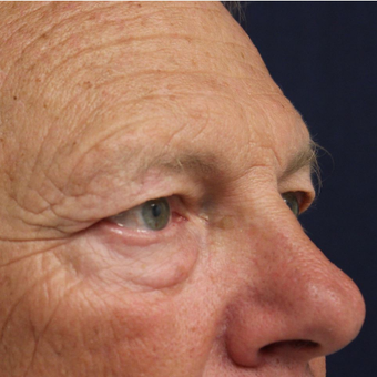 63 year old man treated with Eyelid Surgery (Upper/Lower Blepharoplasty) before 3690819