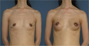 Breast Reconstruction, Nipple Sparing before 1033573