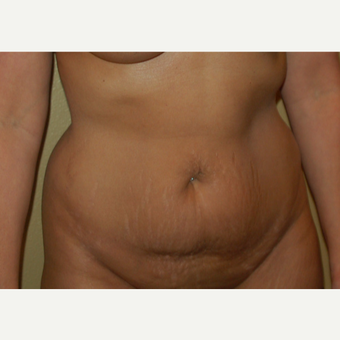 45-54 year old woman treated with Tummy Tuck before 3365614
