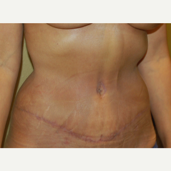 45-54 year old woman treated with Tummy Tuck after 3365614