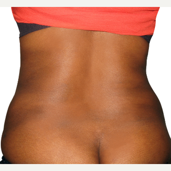 35-44 year old woman treated with Smart Lipo after 3634947