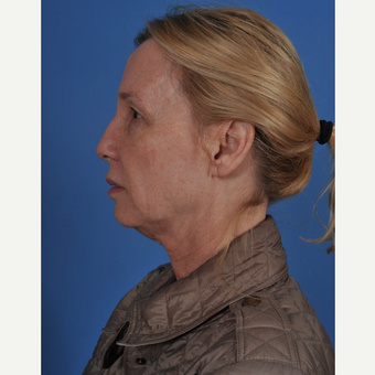 55-64 year old woman treated with Facelift before 3437567