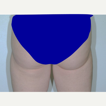 25-34 year old woman treated with Liposuction after 3346065